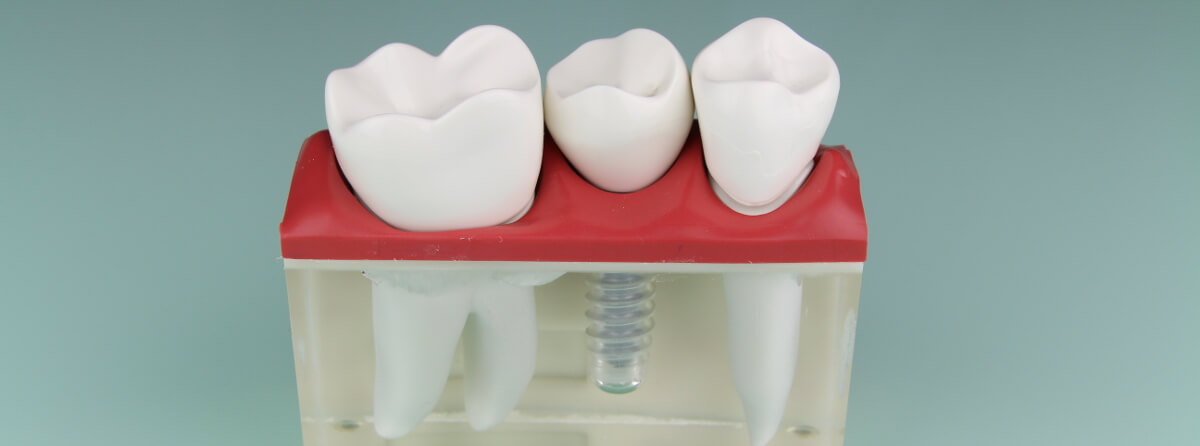 Dental-Implantat vorteilen