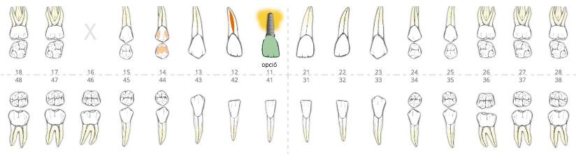 Kosten von Zahnbehandlungen in Ungarn
