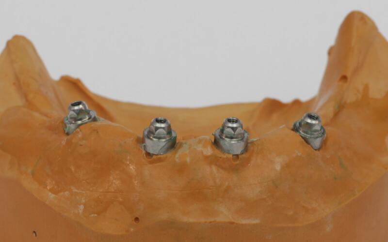 4 Zahnimplantate im Unterkiefer All-on-4
